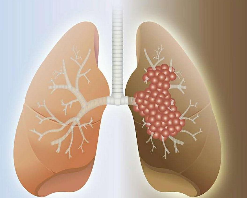 肺癌的治疗方法有哪些