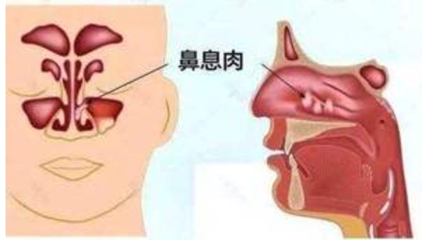鼻息肉的治疗方法有哪些?